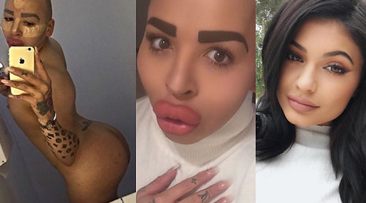 Fillers, Kim Kardashian, Kylie Jenner, Jordan James Parke, Operationer, Botox, instagram