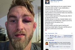 Alexander Gustafsson, blåslagen, UFC, The Mauler, Facebook, MMA, Anthony Johnson