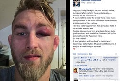 UFC, Alexander Gustafsson, Anthony Johnson, The Mauler, MMA, blåslagen, Facebook